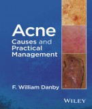 Ebook Acne causes and practical management: Part 1