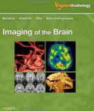 Ebook Imaging of the brain (1st edition): Part 1