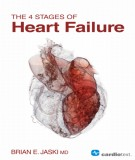 Ebook The 4 stages of heart failure: Part 1