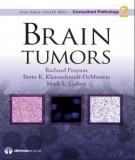 Ebook Brain tumors: Part 1
