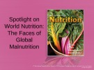 Lecture Discovering nutrition - Chapter 12a: Spotlight on world nutrition: The faces of global malnutrition