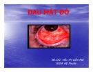 Bài giảng Đau mắt đỏ - BS. Tiêu Thị Cẩm Mai