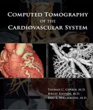 The cardiovascular system and the computed tomography: Part 2