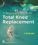 Total knee replacement - A guide for beginners: Part 1
