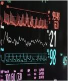 Top 10 lý do chọn Pulse oximeter để đánh giá Oxygen hóa