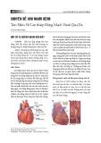 Chuyên đề cho người bệnh: Tìm hiểu về can thiệp động mạch vành qua da