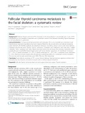 Follicular thyroid carcinoma metastasis to the facial skeleton: A systematic review